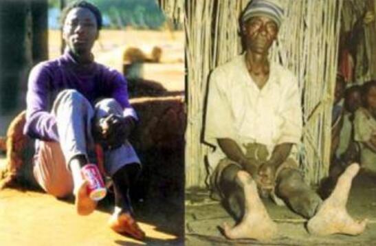 非洲鸵鸟人只有两个脚趾,全族都有螯虾综合症