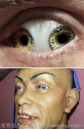 世界十大最恐怖的眼球,双瞳孔眼乃绝世罕见(胆小慎入)