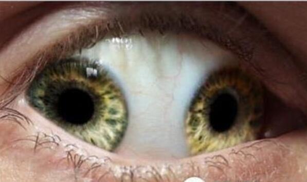 世界十大最恐怖的眼球,雙瞳孔眼乃絕世罕見(膽小慎入)
