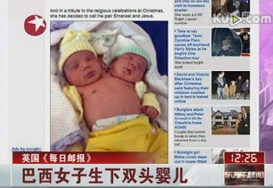 巴西双头婴儿,25岁女子生下双头男婴(共用身体和心脏)