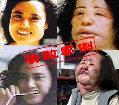 韩国风扇大妈韩苗可,整容被整成风扇脸(整容前后对比照)