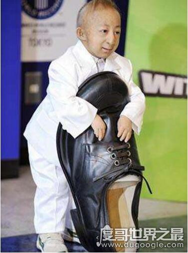 中国第一袖珍人,何平平身高74.61cm(出生时仅1斤重)