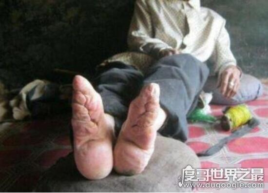 裹脚是从什么时候开始的,缠足是从南唐李煜时期开始