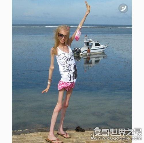 世界上最瘦的女人,身高158厘米体重却只有20公斤(像干尸)