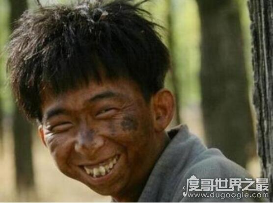 亚洲最丑明星榜前十,巨兴茂丑出天际但实力强