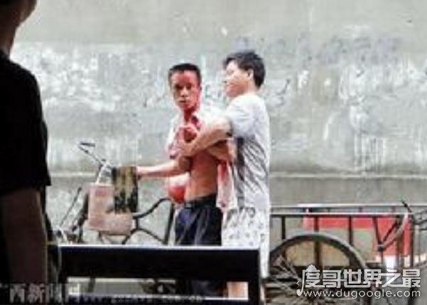 """因小事动拳脚上演街头闹剧,""""飙血哥""""走红网络(天太热别上火)"""