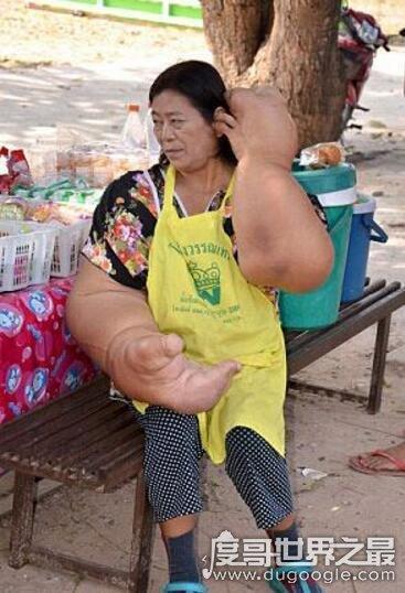 世界上最大最粗的手,泰国女子患巨臂症手臂比腰还粗(组图)