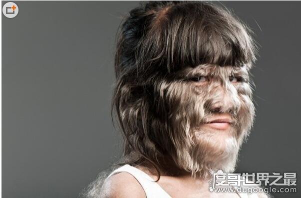世界上毛最多的人盘点,整个身体99%的部位被毛覆盖(组图)