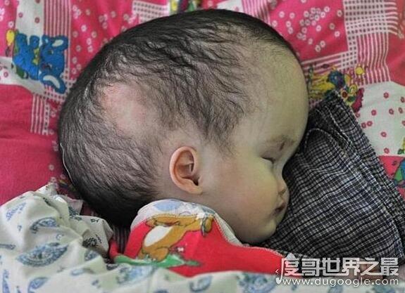 福岛核泄漏后变异女人,怀孕女子被辐射后生出畸形婴儿