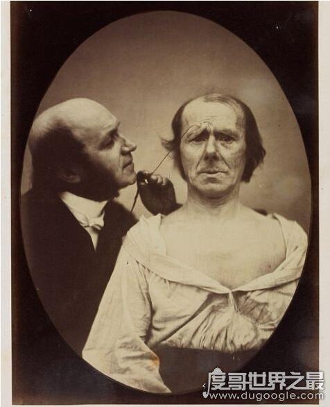 达尔文最后的恐怖实验,用电流刺激面部肌肉做表情堪比酷刑