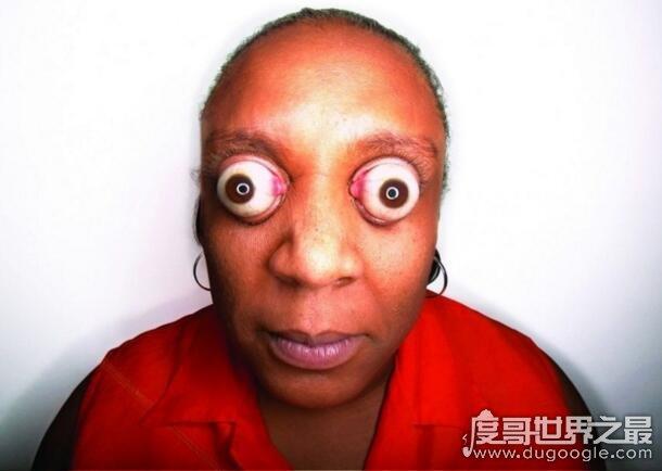 世界上眼球最突出的女人,金·古德曼(突出眼眶11毫米)