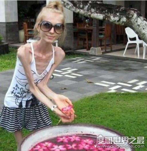 世界上最瘦的女孩,kseniya bubenko(25岁仅有40斤)