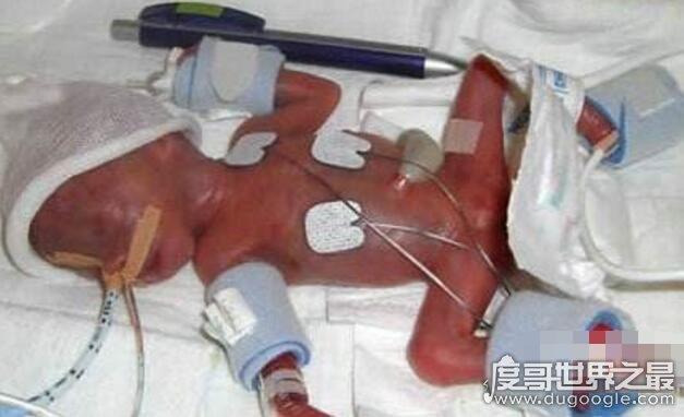 世界上最小的婴儿,阿米利娅·泰勒(仅重280克/长24厘米)
