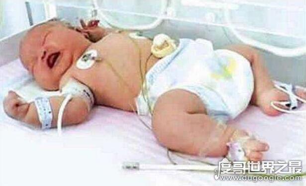 世界上最大的婴儿,重达36斤(最小的婴儿竟只有280克)