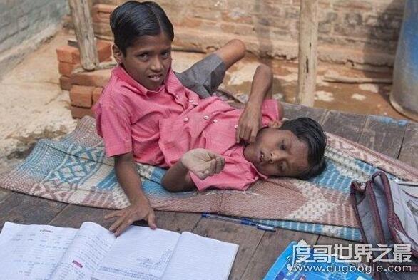 世界存活时间最长的双头男婴,印度连体兄弟(已经16岁了)