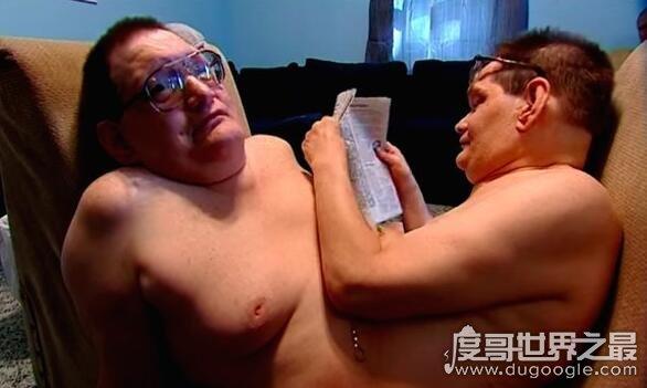 世界上最老的连体兄弟,唐尼盖里昂和罗尼盖里昂今年67岁了