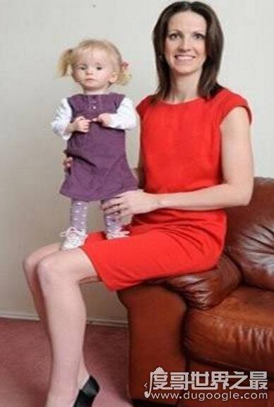 现实中的拇指姑娘盘点,英国3岁女孩仅有8公斤重(组图)