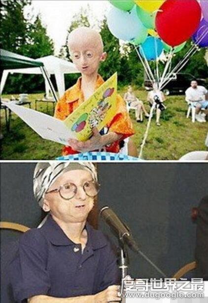 世界上最老的孩子,塞斯·库克(12岁的年纪90岁的面容)