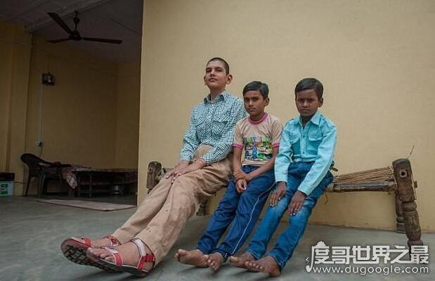 世界上身高最高的婴儿,卡兰·辛格(出生时便有63厘米)