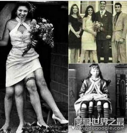 世界上腿最多的人,六条腿婴儿称奇迹(4条腿女人结婚生子)