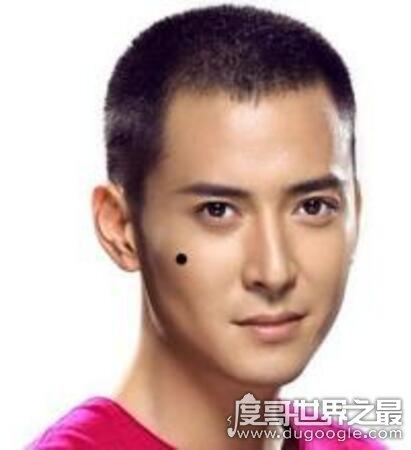 男人10处有痣是富贵痣,头顶长痣的男人是好运的象征