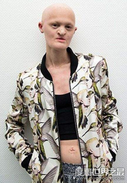 世界上最丑女模特盘点,梅勒妮·盖多斯最值得敬佩(组图)