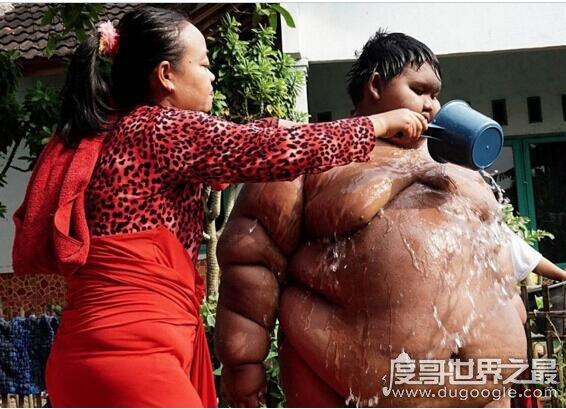 世界上最胖的孩子,阿里亚·珀尔马纳(仅10岁重400斤)