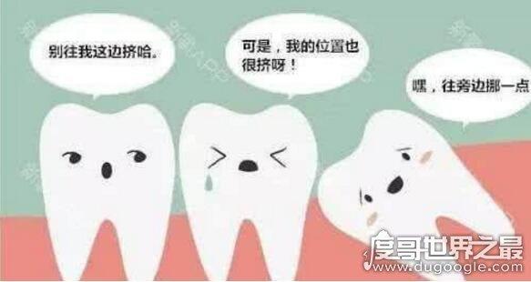 拔智齿后悔死了,这4种情况下的智齿不用拔(拔了就后悔)