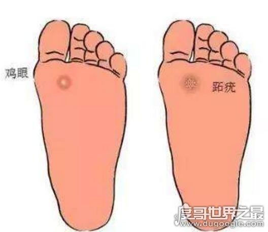 脚底鸡眼是怎么形成的?走路走多了的原因(附处理方法)