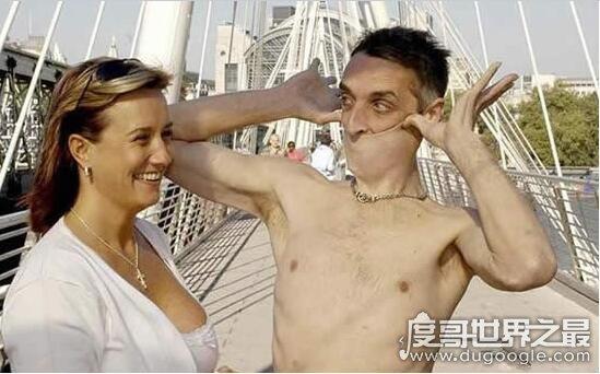 世界上皮肤最有弹性的人,加里·特纳(能拉伸16厘米)
