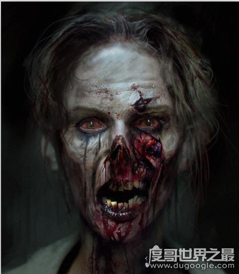 重庆僵尸男孩,形如僵尸张牙舞爪又嗜血(是一名癔症患者)