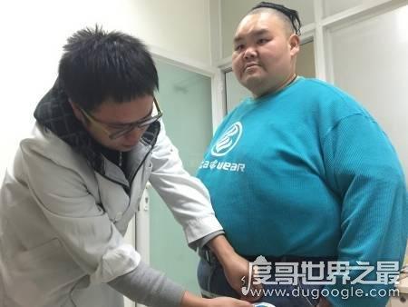 中国第一胖男子522斤 现任中国第一胖,邓桂梁体重522斤(前任孙亮因心脏衰竭死亡)