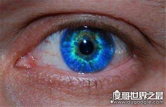十大令人羡慕的眼睛,小说中的透视眼现实中真的存在