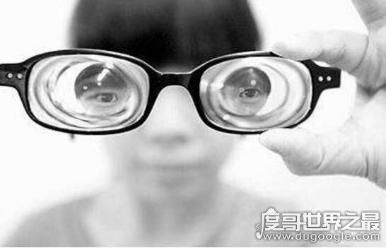 世界上近视度最高的人,超高度近视人盘点(最高度数4800度)