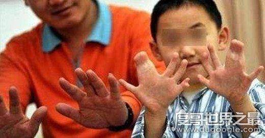 世界上手指最多的人,印度男孩手指脚趾共有34个(与遗传有关)