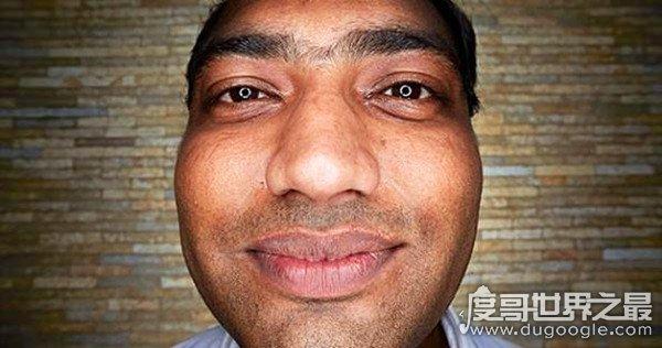 世界上牙齿最多的人,印度一小伙长出37颗牙(比常人多出5颗)