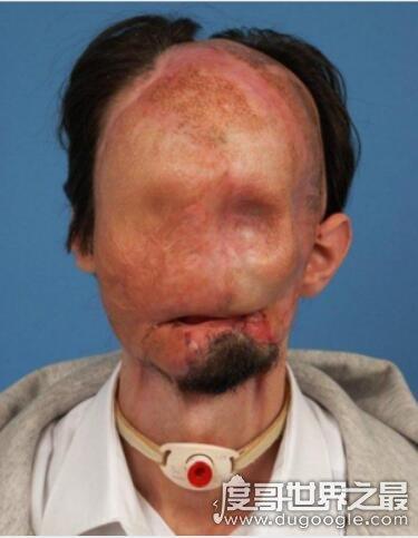 世界上最可怕的病症,无脸症(先天脸颊和下颌骨发育畸形)