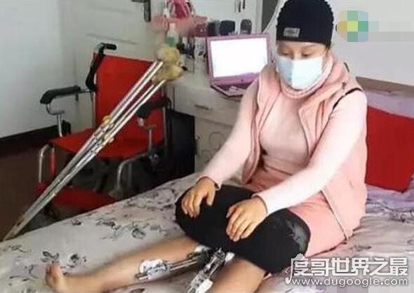 中国第一整容狂人,花费400万元整容200多次(将自己身体整垮)