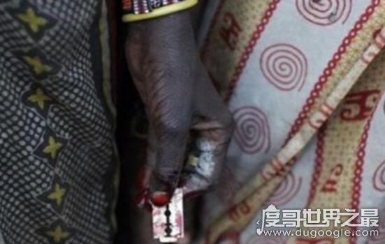 非洲割礼指的是什么,一种割除生殖器的仪式(男割包皮/女割阴蒂)