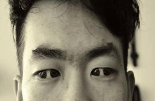 世界上有双瞳的人吗,双瞳孔是真实存在(我国就有不少)